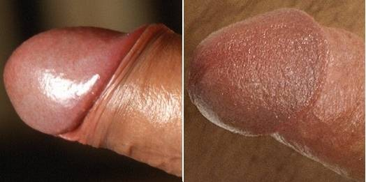 Normal glans uncircumcised penis, keratinised glans of a circumcised penis