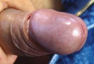 Normal glans uncircumcised penis