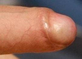Skin bridge caused by circumcision